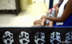 Spania: S-a născut primul copil din Europa cu microcefalie cauzată de virusul Zika