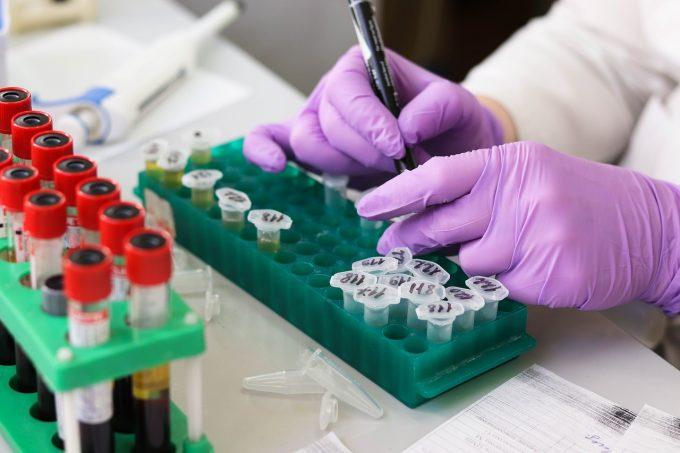 Grupa sangvină poate să determine severitatea cazurilor de COVID-19, potrivit cercetătorilor germani